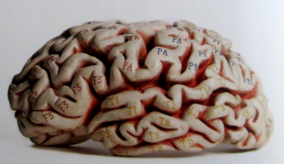 Plaster Model of the Brain, brains, plaster models, Hary Brookes Allen Museum of Anatomy and Pathology, University of Melbourne, is it art?