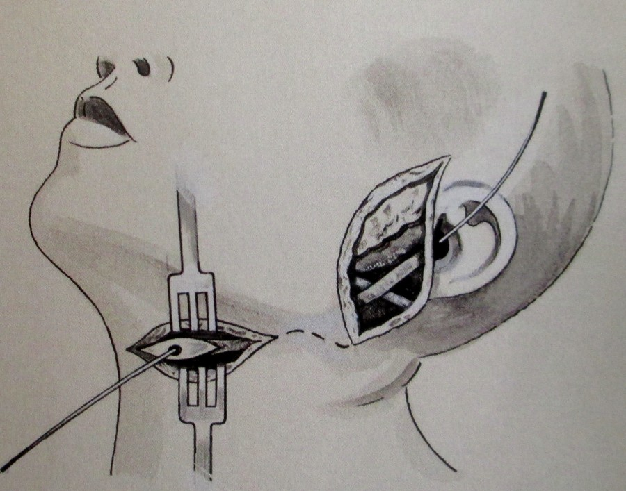 Eric Thake illustration of a surgical procedure, art, sketch, is it art? Medical History Museum, University of Melbourne,